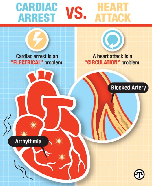 Image result for heart attack cardiac arrest difference