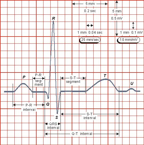 A Quick Guide to ECG - IVLine